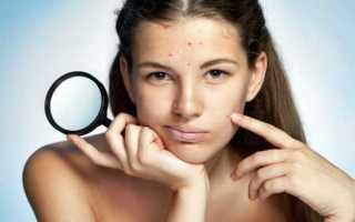Детская чистка лица подростку: уход за кожей в косметолога