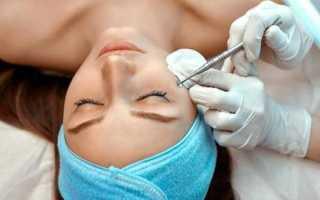 Механическая чистка кожи лица