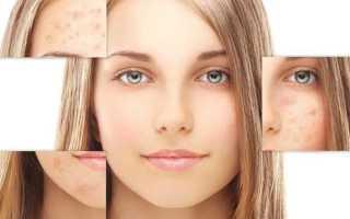 Какой пилинг подойдет для проблемной кожи