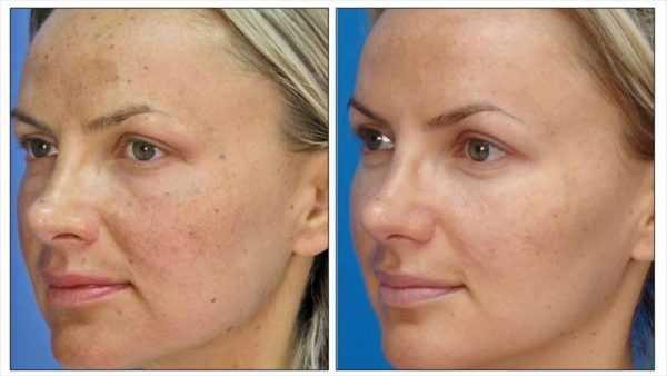 Фото женщины до и после применения пилинга лица хлористым кальцием