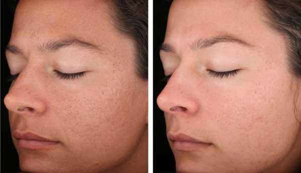 поверхностный пилинг фото до и после