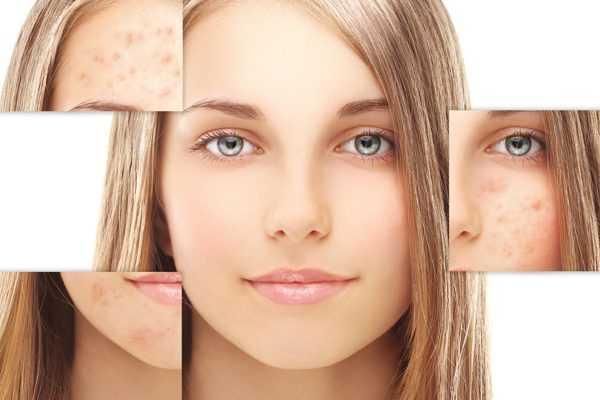 Пилинг для проблемной кожи