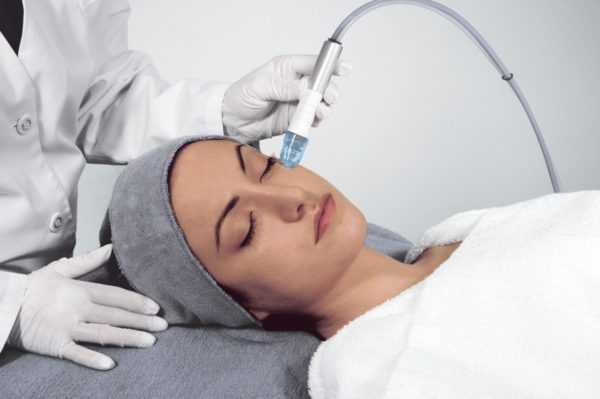Вакуумный метод чистки лица